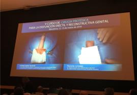 Inicio de las Cirugías, con los Drs. Martínez-Salamanca y Sarquella.